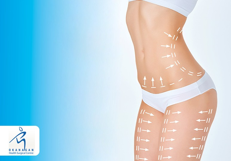 Non-Surgical vs Surgical Body Contouring