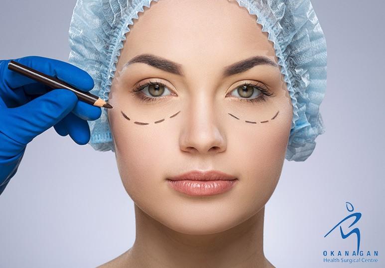 Kelowna Eyelid Surgery