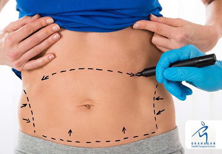 Abdominoplasty and Body Contouring Kelowna