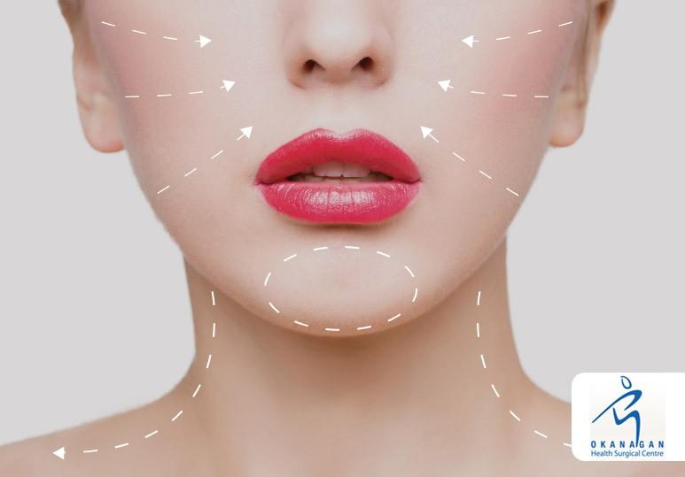 plastic surgery trends in kelowna