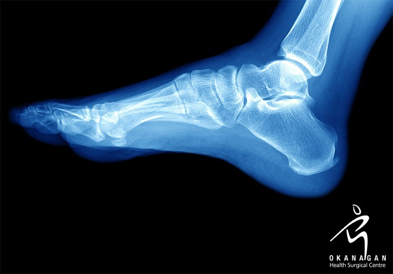 Everything You Need to Know About a Foot Fusion Surgery