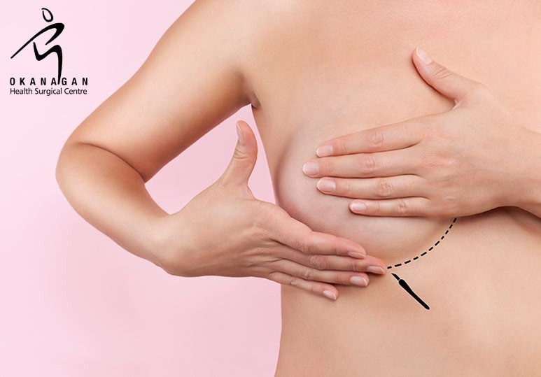 Okanagan Health Surgical Centre Kelowna BC A Step-By-Step Guide to Breast Augmentation Recovery