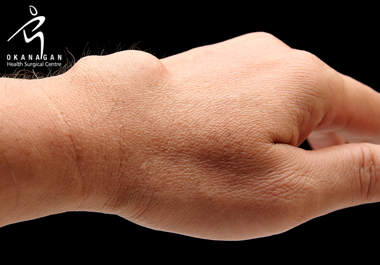 Are You At Risk of Developing a Ganglion Cyst?
