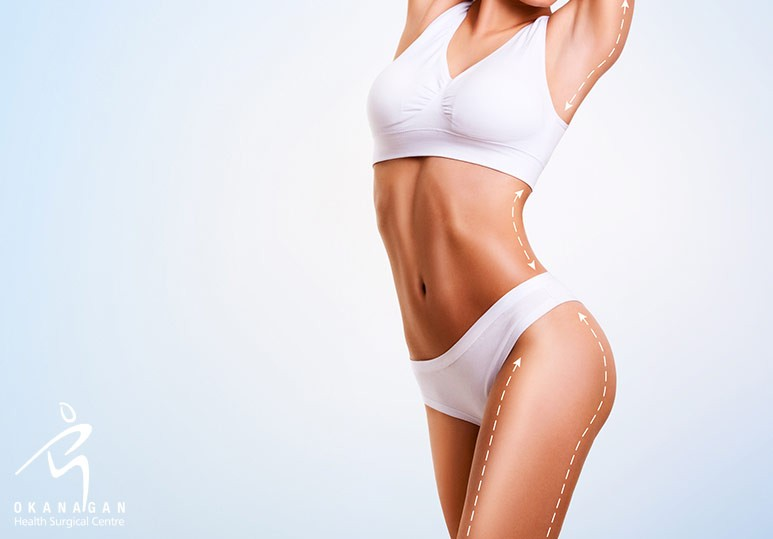 How Liposuction Can Help You Achieve Your Ideal Body Shape