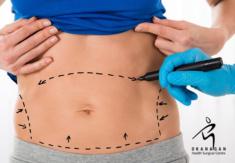 Top Tips for Preparing for an Abdominoplasty
