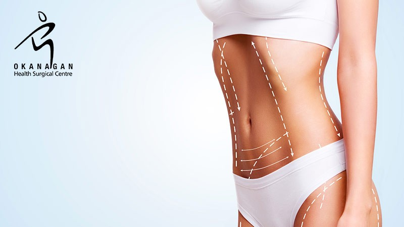Are You a Good Candidate for Body Contouring Surgery?
