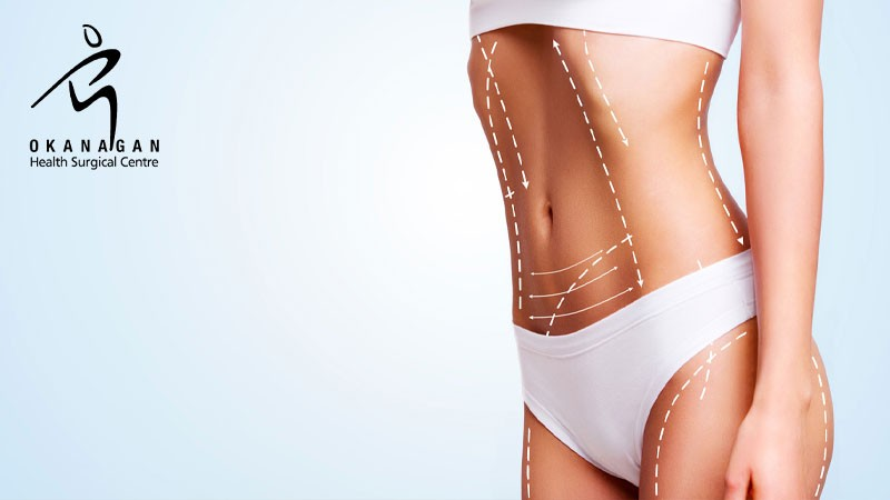 Okanagan Health Surgical Centre | Kelowna Breast Augmentation