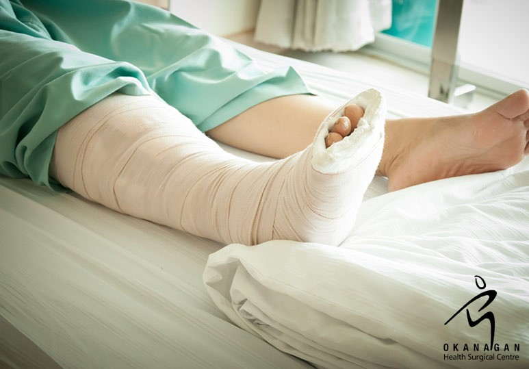 Kelowna ankle surgery, Kelowna foot surgery
