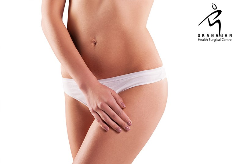 4 Things You Must Know About Liposuction