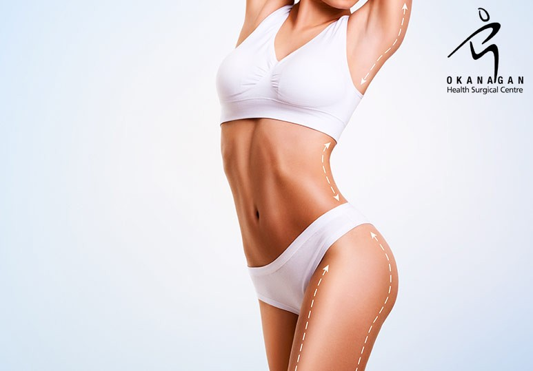 Kelowna Liposuction