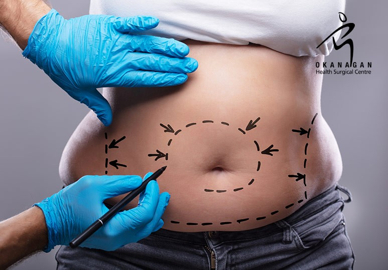 Your Total Guide to Liposuction Costs