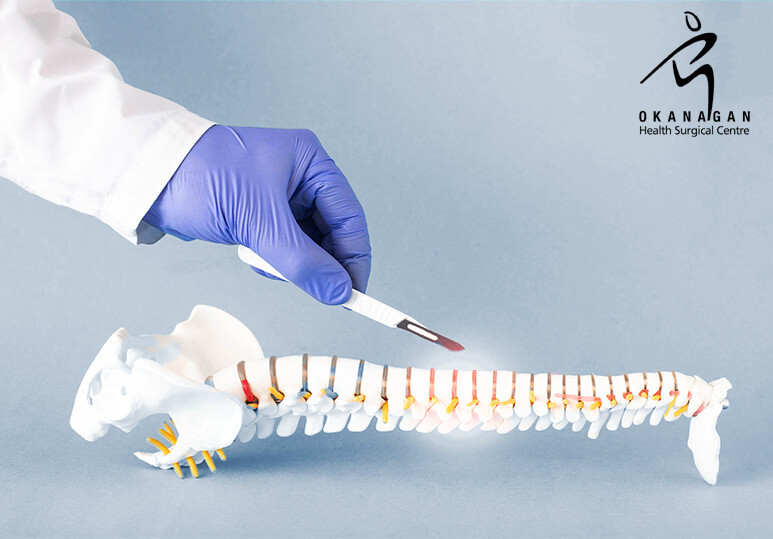 Okanagan Health Surgical - Minimal spine surgery
