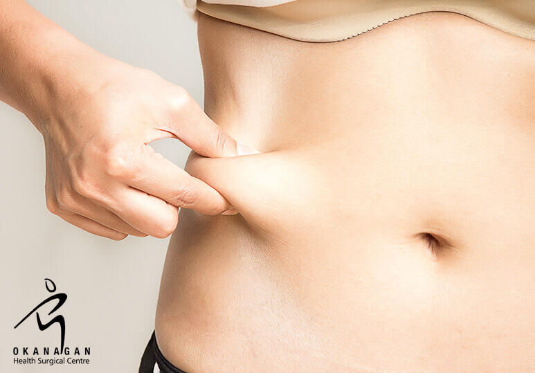 The Health Benefits of Liposuction